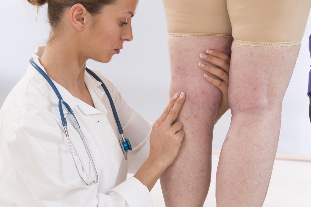 trombose-sintomas-tratamento.jpg