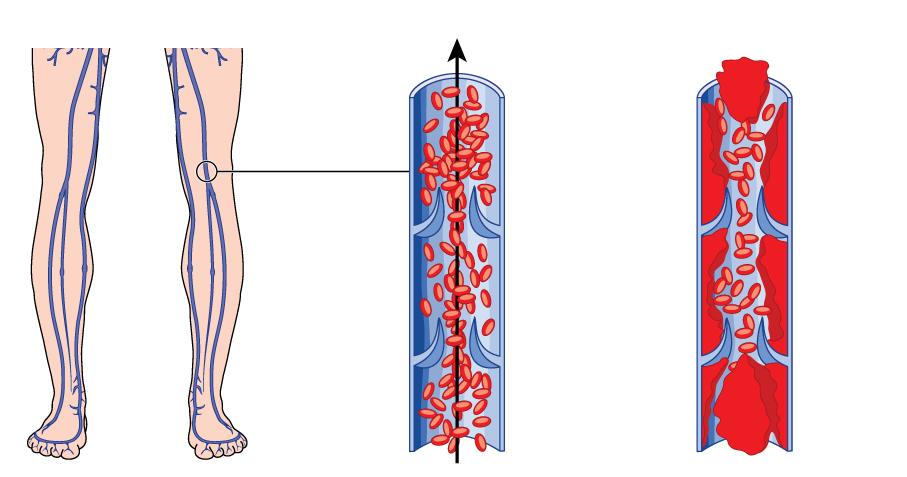 trombose-sintomas.jpg